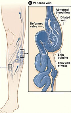 how to prevent spider veins on legs