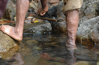 How to prevent varicose veins Water Walk