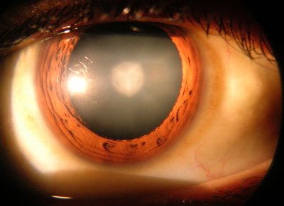 Cataracts And Diet