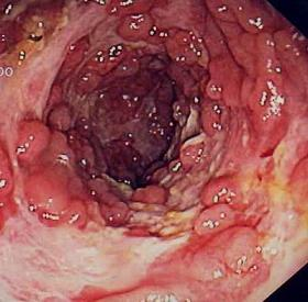 Intestines Before Colitis Cure